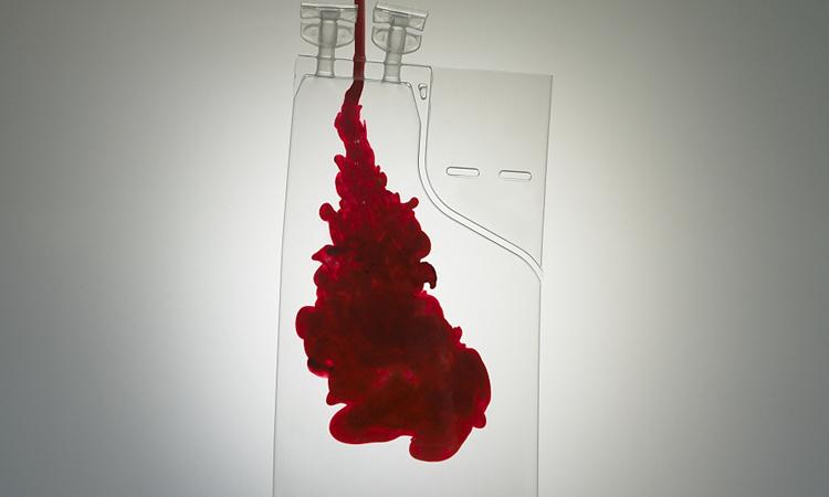 Huyết tương của người khỏi bệnh có thể chống lại virus corona
