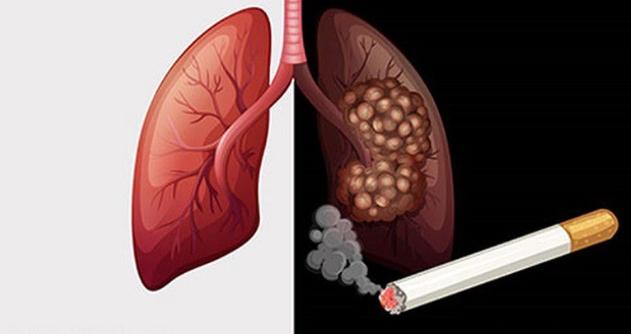 Lá phổi đen kịt sau khi hút 20 điếu thuốc lá