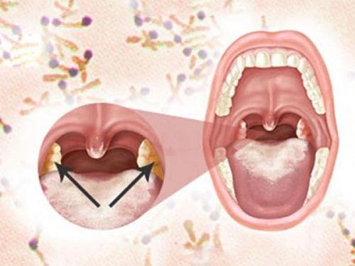 eDoctor - Cảnh giác với nhiều biến chứng nguy hiểm của bệnh bạch hầu