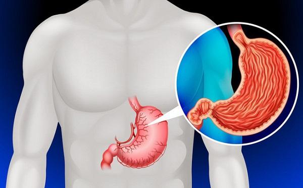 eDoctor - Ung thư dạ dày là gì? Dấu hiệu nhận biết từ sớm và cách phòng ngừa