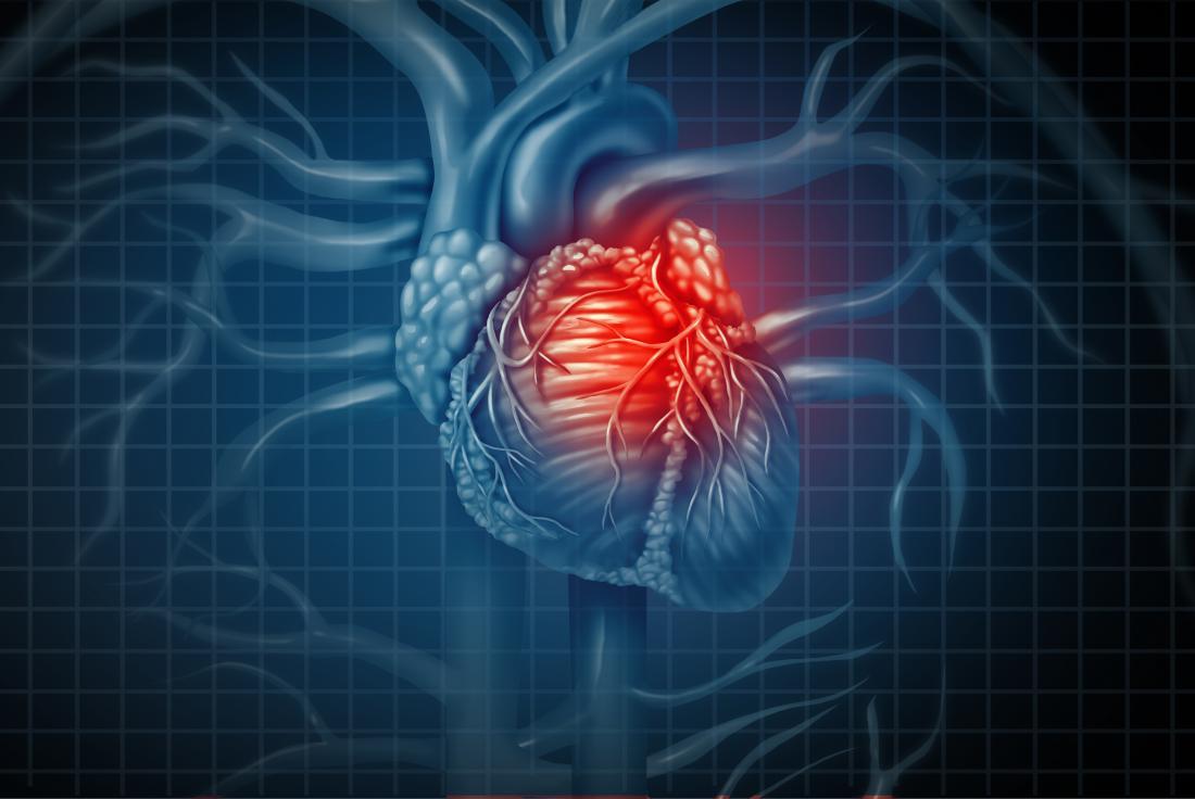 eDoctor - Ý nghĩa của siêu âm tim - Khi nào cần phải siêu âm tim?