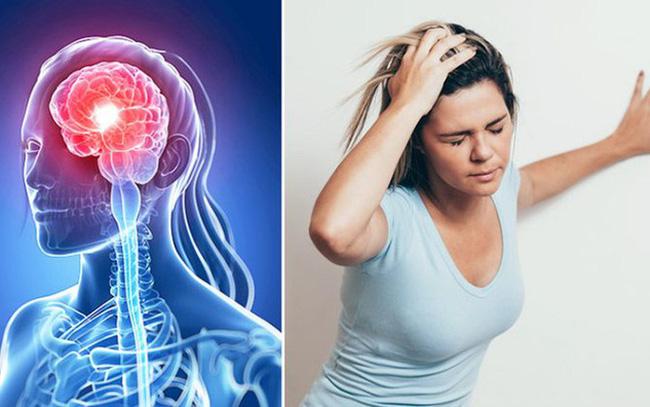 Chụp cộng hưởng từ (MRI) để tầm soát sớm tai biến mạch máu não
