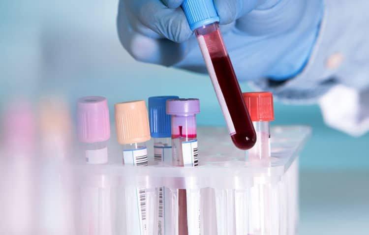 eDoctor - Bạn đã biết cách đọc những chỉ số xét nghiệm máu cơ bản này?