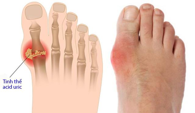 eDoctor - Tăng acid uric trong máu: Nguyên nhân của bệnh gout và các biến chứng nguy hiểm