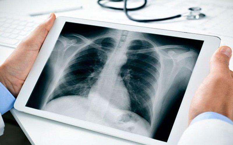 eDoctor - Chụp X quang phổi có thể chẩn đoán được những bệnh gì?