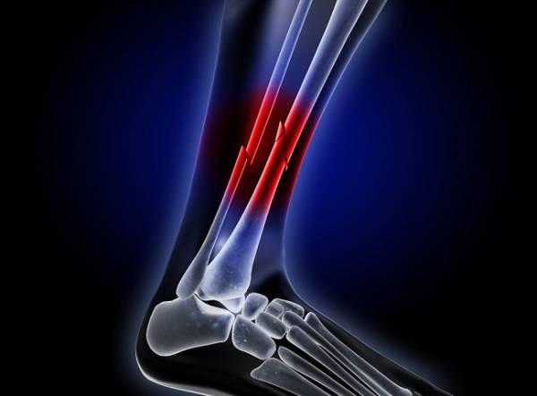 eDoctor - Gãy xương cẳng chân mất bao lâu để hồi phục?