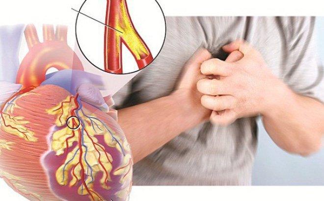 eDoctor - Thuốc lá phá hủy mạch vành như thế nào?