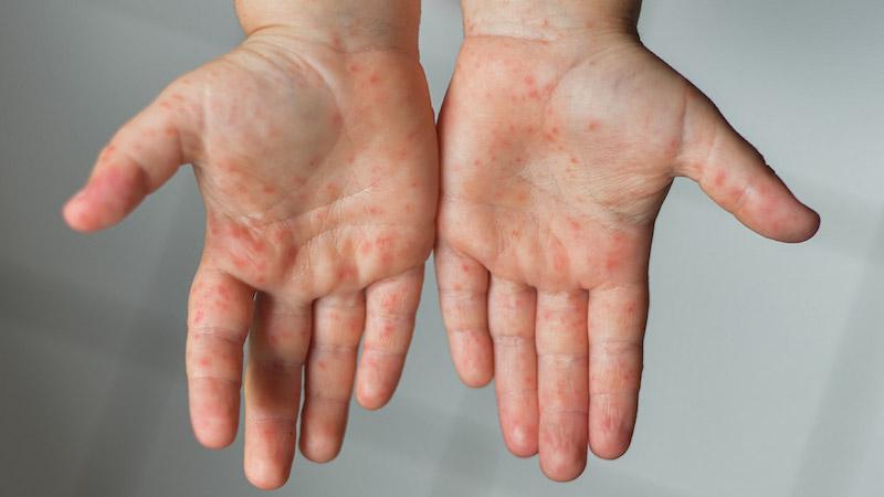 eDoctor - Bệnh tay chân miệng đang bùng phát ở mức báo động